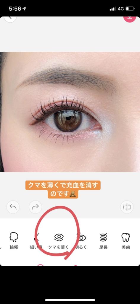 目の充血の消し方